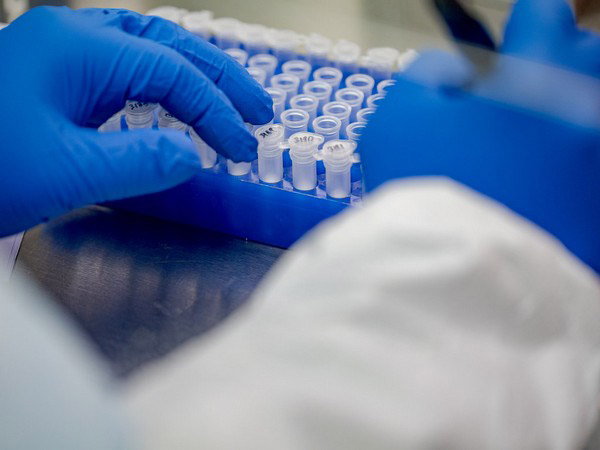 Cost of rapid COVID-19 testing to be halved in low- and middle-income countries: Unitaid