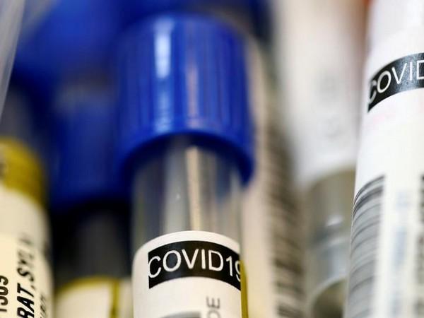 U.S. COVID-19 deaths top 340,000: Johns Hopkins University
