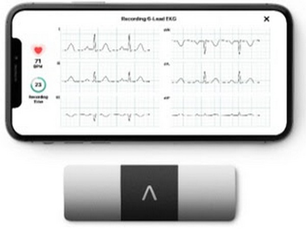AliveCor brings the world's only six-lead, FDA-cleared personal ECG to India
