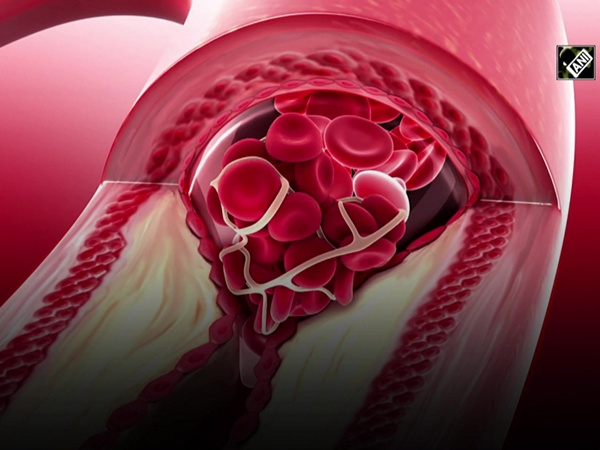 Study suggests pregnancy, ovarian function are risk factors for coronary artery disease