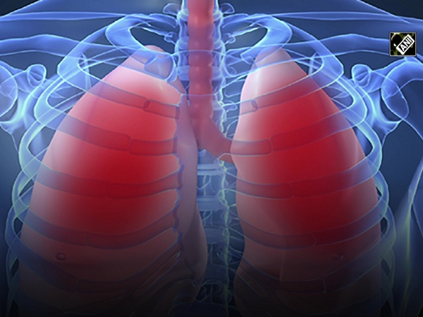 Study suggests CBD helps reduce lung damage from COVID