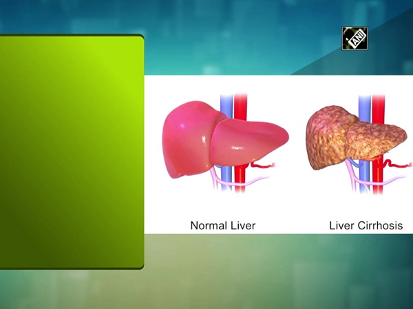 Chronic liver disease affects both men and women similarly